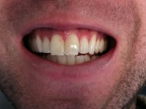 Teeth-Whitening-Toronto-3D-Dentistry-Patient-Before-2