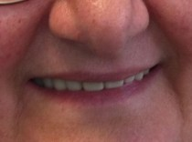 snap-on-smile-toronto-after-3D-dentistry-2