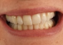 Before ZOOM! Teeth Whitening