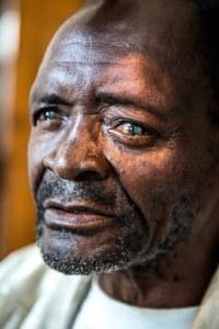 A Million Miracles, Sightsavers, Malawi