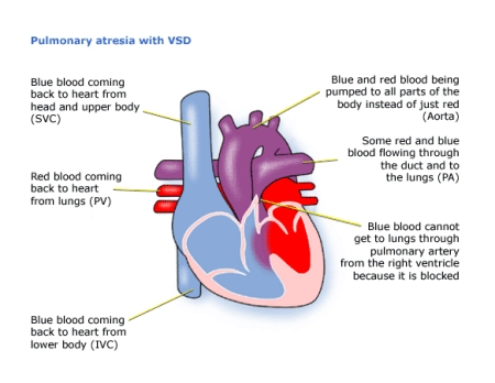 Childrens heart federation pulmonary atresia pulmonary atresia ccuart Image collections