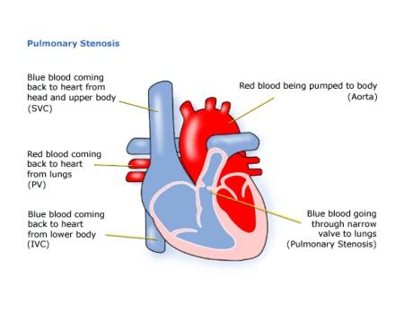 Children S Heart Federation Pulmonary Stenosis