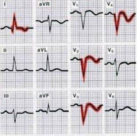 infarct-miocardic