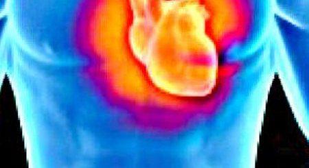 insuficienta-aortica