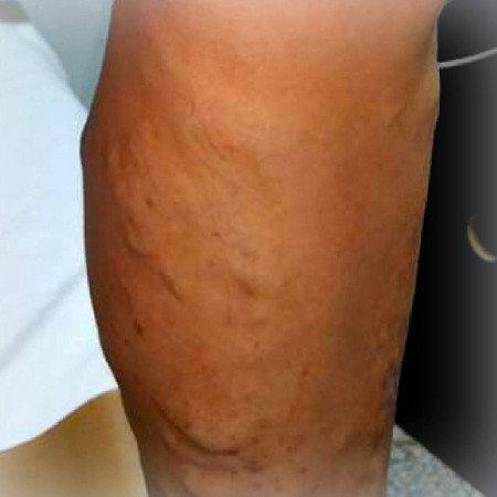 nutriție adecvată în vene varicoase și exerciții