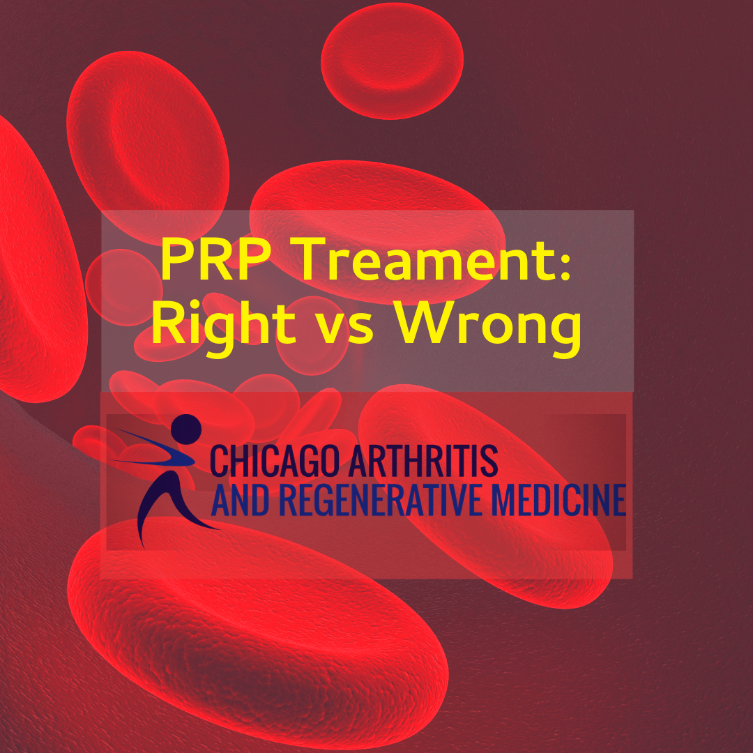 the right way to do prp treatment