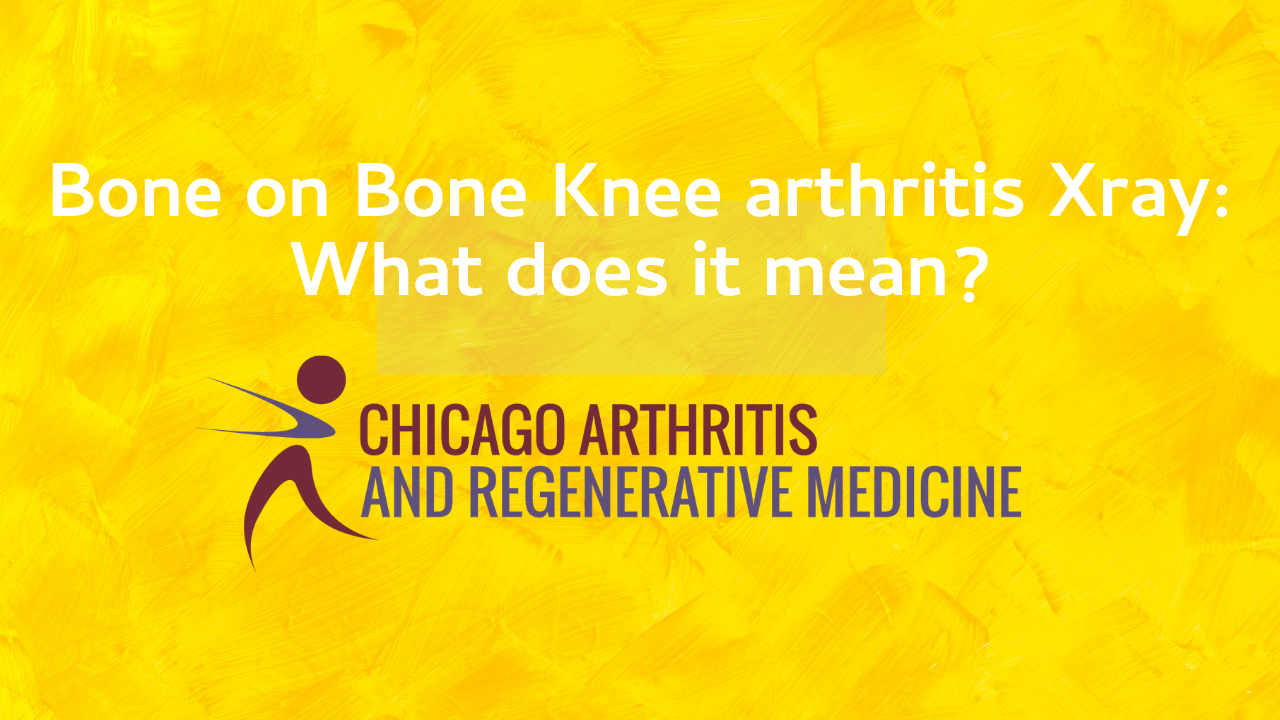 bone on bone knee arthritis