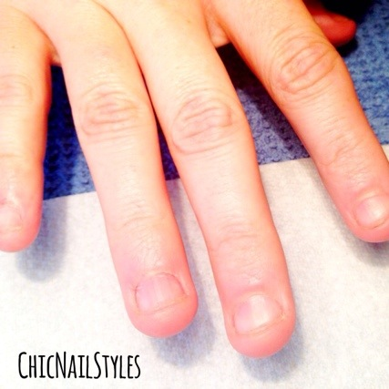 Acrylic Tips Nail Biting 2