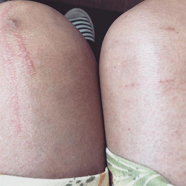 ネコの質問その1。「あなたが好きなのは切り傷ですか? それともミミズ腫れですか?」