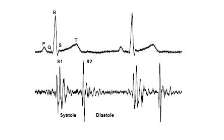 Diagram Of Eh System AB Diagram Wiring Diagram ~ Odicis