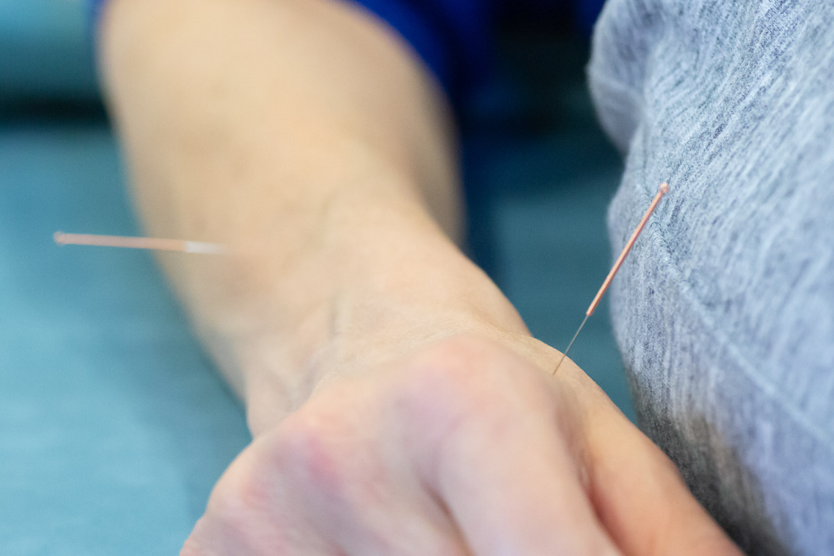 acupuncture chilterns ms centre