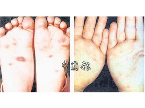 馬口出現手足口癥 校方隔離2幼童防傳染   中國報 China Press