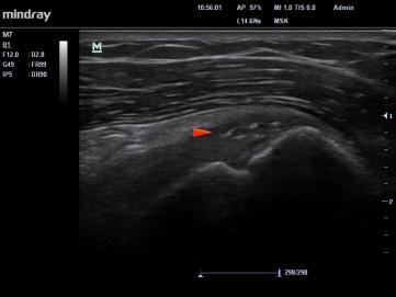 Echographie de la même patiente , qui ne présente plus de douleur. L'échographie démontre la résorption quasi totale du dépôt calcique.