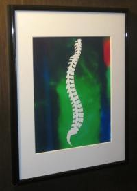 Matted and Framed Chiropractic Spine Silhouette Print ...