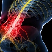 Sciatica and Lower Back Pain