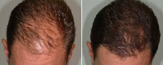 Résultat mésothérapie cheveux
