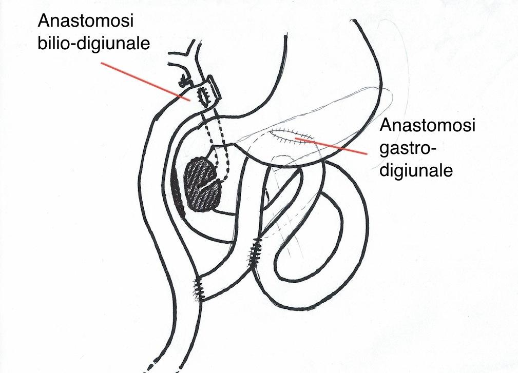 Chirurgia del Pancreas
