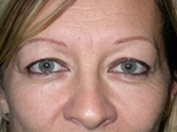 Interventions de lifting ou chirurgie esthétique du visage