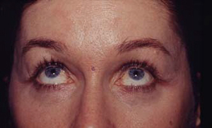 Interventions de blépharoplastie ou chirurgie esthétique des paupières