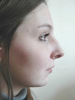 Interventions de rhinoplastie