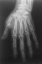 Docteur Nicolas CHANZY  chirurgie orthopdique et traumatologique Paris  Les fractures du poignet
