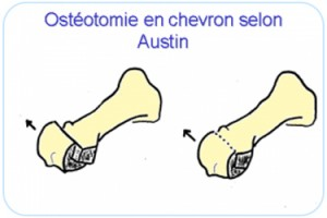 Osteotomie-chirurgie-pied