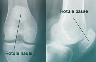 Transposition de la tubérosité tibiale antérieure du genou