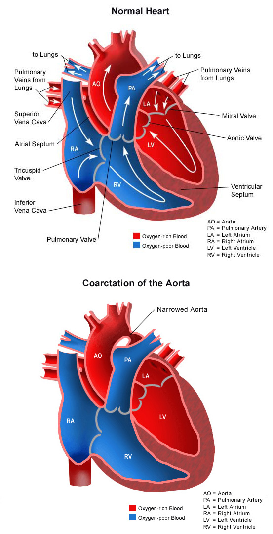 Coarctation of the Aorta  CHOC Childrens