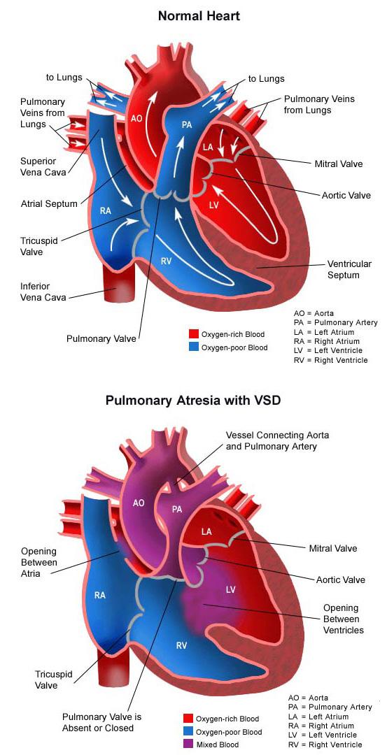 Pulmonary Atresia (PA) - CHOC Children's