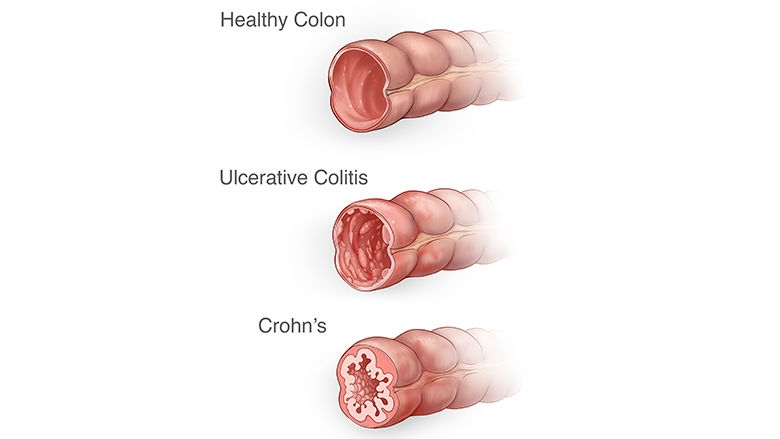 Image result for crohn's and inflammatory bowel disease