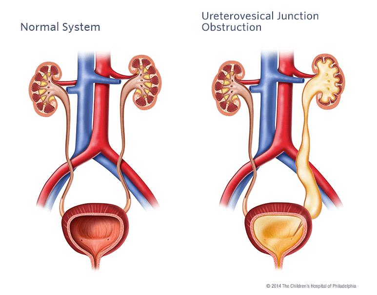 Ureterovesical Junction (UVJ) Obstruction | Children's Hospital of Philadelphia