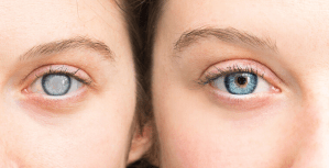 two eyes from two women