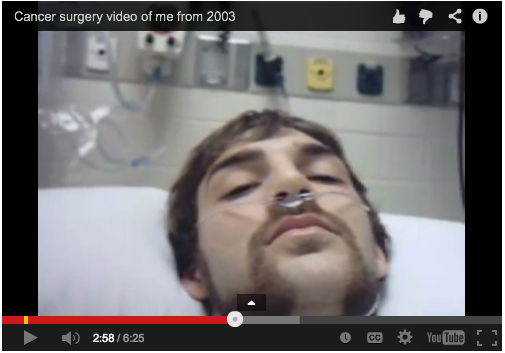 Cancer surgery video of me from 2003
