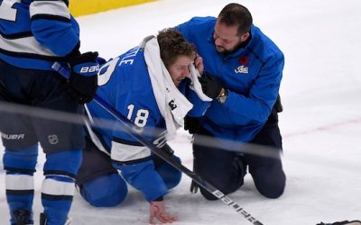 Jets' Little Receives 25-30 Stitches After Puck to the Head