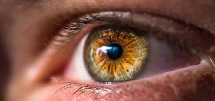LASIK in Toronto Laser Eye Surgery Review