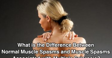 What is the Difference Between Normal Muscle Spasms and Muscle Spasms Associated with Multiple Sclerosis