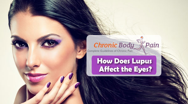 lupus and eyes