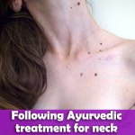 Ayurvedic treatment for neck pain relief
