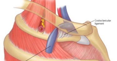 What is Costoclavicular Syndrome