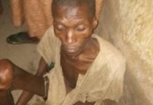 Police He was found naked from the waist down and unable to walk without support