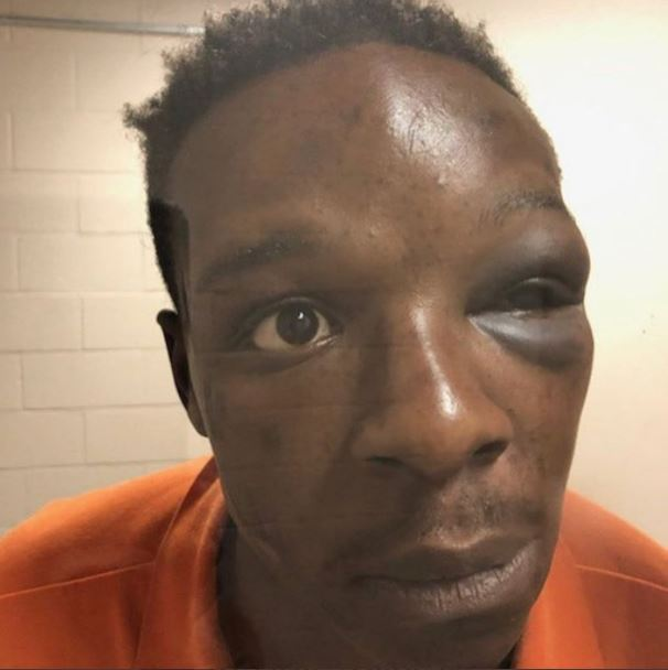 A mugshot of Roderick Walker after he was battered by a deputy sheriff in Clayton County, Georgia