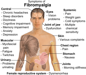 9 Common Symptoms of Fibromyalgia and What to Do If You're Diagnosed
