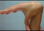 EDS thumb