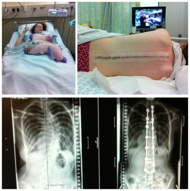 collage of scoliosis surgery related photos: upper left: a photo of Shona in hospital bed; upper right: shona post-surgery showing her spine-long scar; bottom left: an x-ray of shona's spine pre-surgery; bottom right: an x-ray of shona's spine post-surgery