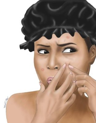 idées reçues sur l'acné