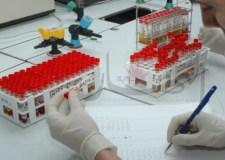 طفرة طبية… علماء يحققون اختراقا كبيرا في علاج الإيدز!