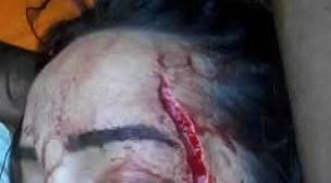 """سيدي بيبي: ومن الحب ما قتل…. عامل فلاحي """"يشرمل"""" زميلته بالعمل بسكين على الوجه"""