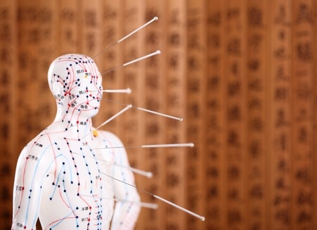 31339485 - eastern or asian acupuncture medical treatment.shallow dof.