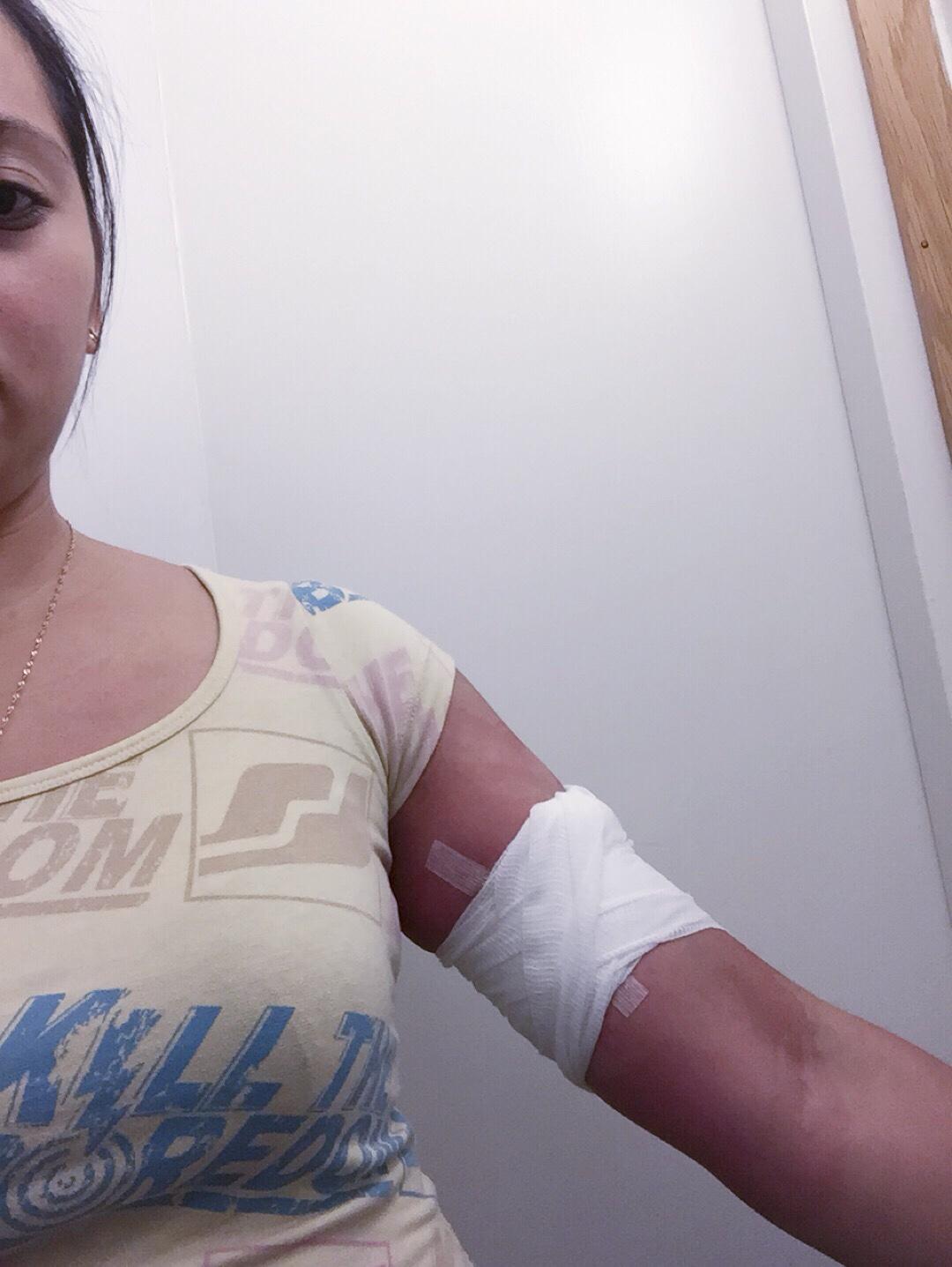 Nexplanon Implant Removal - Aka Chymecindy