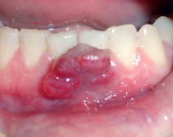 Granuloma piogenico